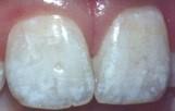 Moderate Flourosis
